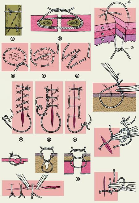 Как зашивать раны в домашних условиях